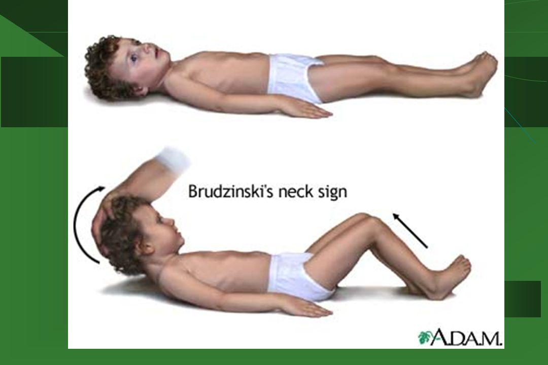 Postacie kliniczne KZM  Postać oponowa (56%) – powrót do zdrowia w czasie 2 tygodni  Postać mózgowa (34%) – zaburzenia świadomości, uszkodzenie móżdżku, oczopląs, afazja, niedowład połowiczy, śpiączka  Postać mózgowo – rdzeniowa (10%) – dodatkowo objawy uszkodzenia rdzenia kręgowego, głównie odcinka szyjnego z towarzyszącym asymetrycznym niedowładem kończyn, zanikiem grup mięśniowych, osłabieniem odruchów