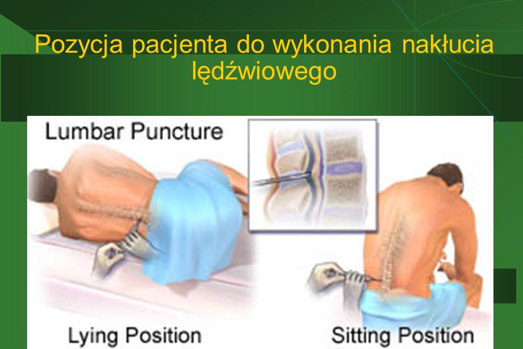Pozycja pacjenta do wykonania nakłucia lędźwiowego