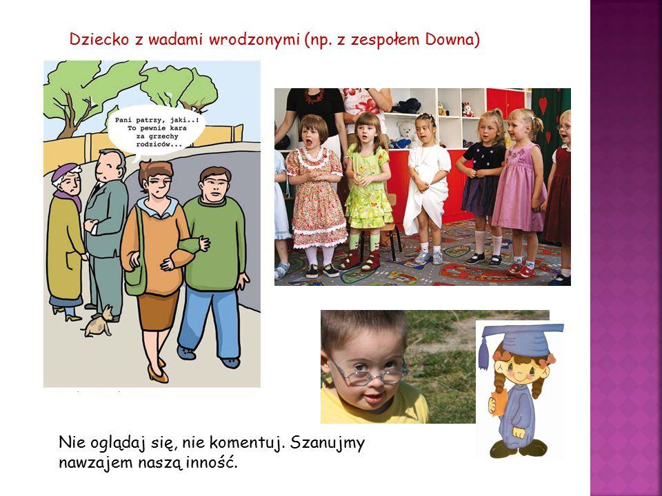Dziecko z wadami wrodzonymi (np. z zespołem Downa) Nie oglądaj się, nie komentuj. Szanujmy nawzajem naszą inność.