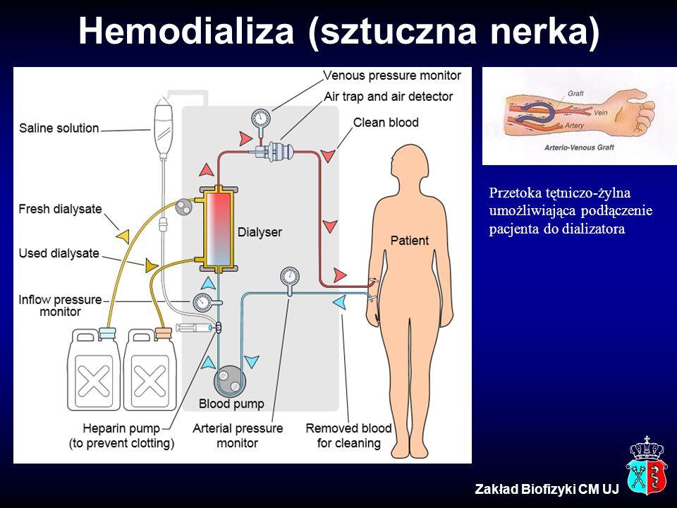 Hemodializa (sztuczna nerka) Zakład Biofizyki CM UJ Przetoka tętniczo-żylna umożliwiająca podłączenie pacjenta do dializatora