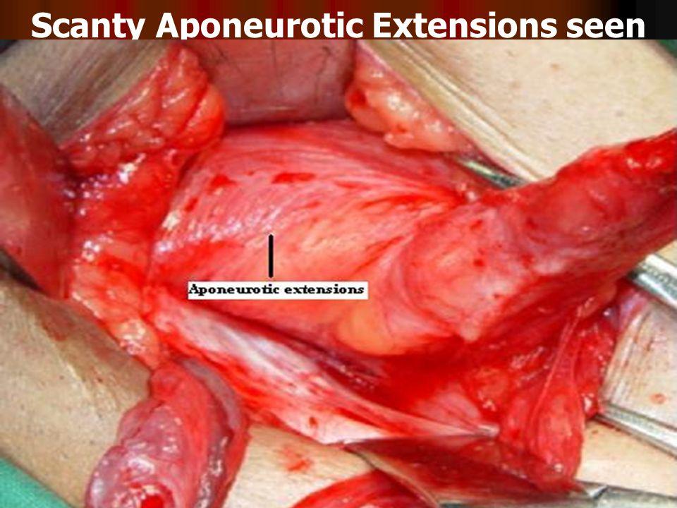 Transversus Abdominis Aponeurotic Arch sending Aponeurotic Extensions