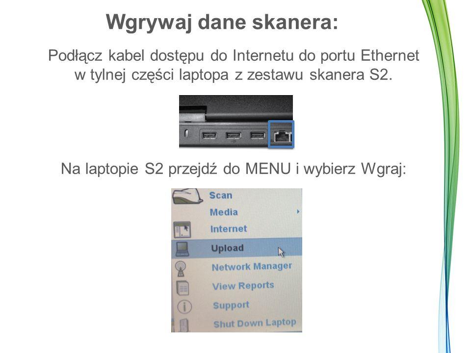 Wgrywaj dane skanera: Podłącz kabel dostępu do Internetu do portu Ethernet w tylnej części laptopa z zestawu skanera S2. Na laptopie S2 przejdź do MEN