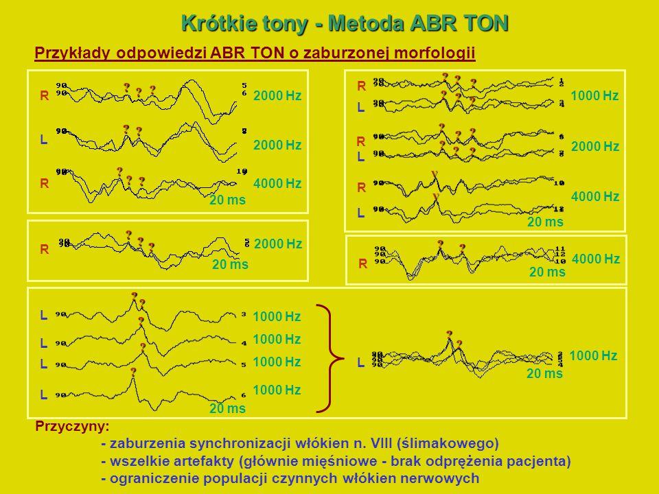 Krótkie tony –Odtwarzanie progów słyszenia Krótkie tony – Odtwarzanie progów słyszenia Naprzemienna wieloczęstotliwościowa stymulacja akustyczna – (AMS) Metoda standardowa (STAND) 1 bodziec, rate – 1x Metoda 2F 2 różne bodźce rate – 2x Metoda 3F 3 różne bodźce rate – 3x Naprzemienna wieloczęstotliwościowa stymulacja akustyczna (AMS) polega na naprzemiennej sekwencyjnej stymulacji kilkoma krótkimi bodźcami (przynajmniej 2 bodźce) o różnych częstotliwościach i zwiększeniu częstości stymulacji (rate) proporcjonalnie do liczby różnych bodźców.