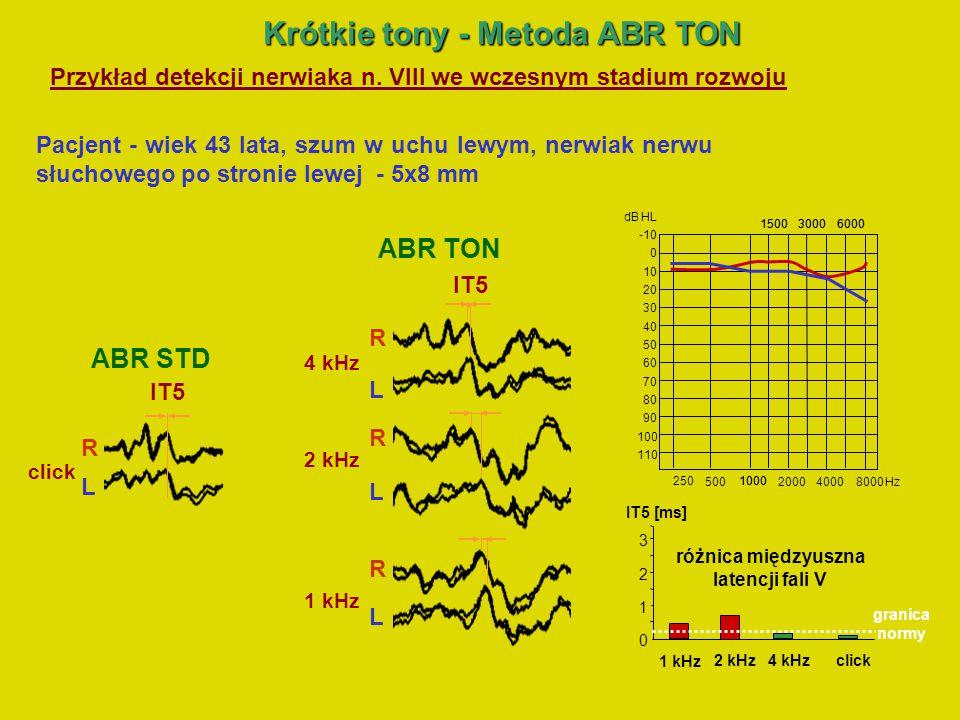 Krótkie tony -Metoda ABR TON-2 Krótkie tony - Metoda ABR TON-2 Cel metody ABR TON-2: Detekcja fali V wywołanej metodą ABR TON w przypadku zaburzonej synchronizacji włókien n.