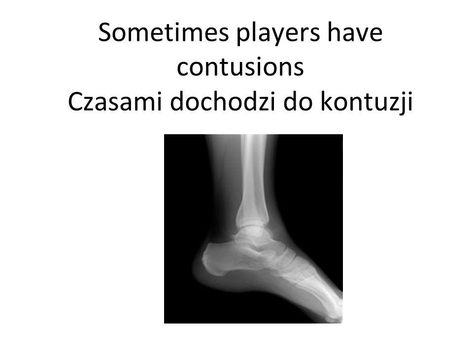 Sometimes players have contusions Czasami dochodzi do kontuzji