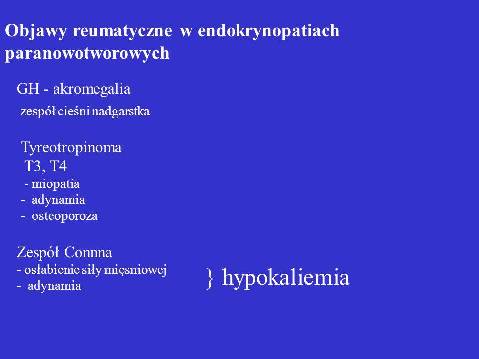 Adynamia i osłabienie siły mięśniowej mogą przypominać objawy polimialgii reumatycznej, zwłaszcza u ludzi starszych
