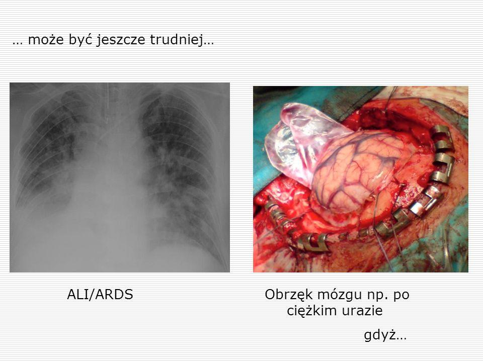 … może być jeszcze trudniej… ALI/ARDSObrzęk mózgu np. po ciężkim urazie gdyż…