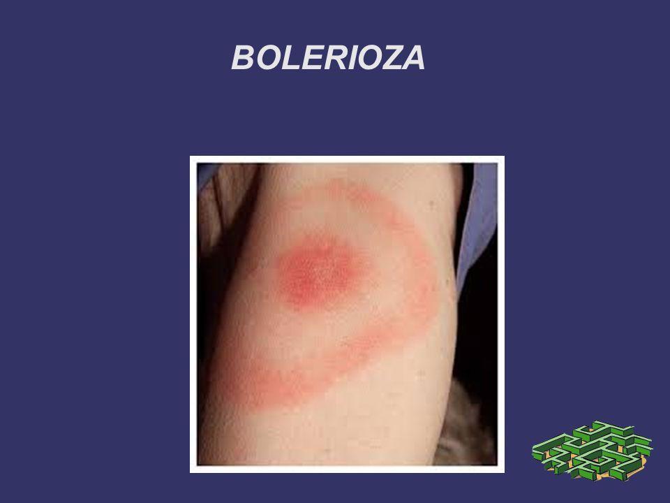 BOLERIOZA