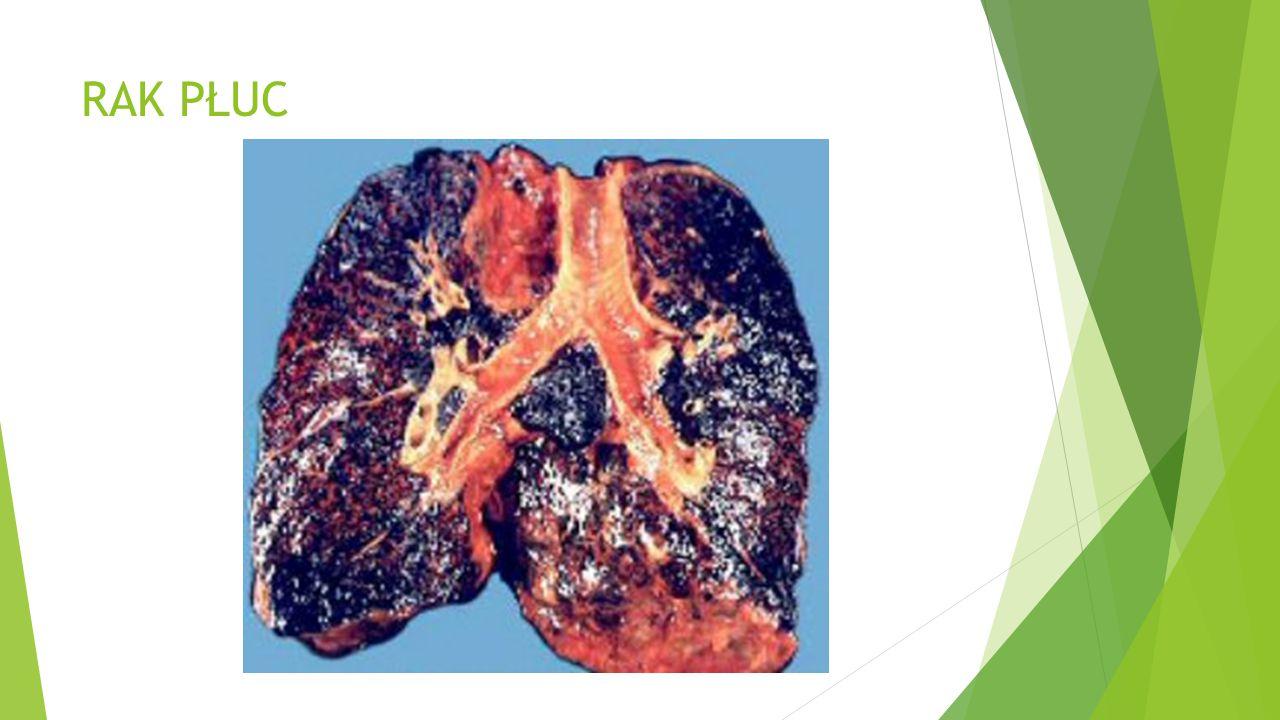 Papierosy wywołują wiele chorób  które są przyczyną przedwczesnej śmierci palaczy i to bardzo często w mękach. Między innymi …