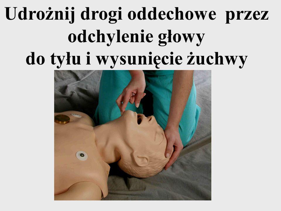 Udrożnij drogi oddechowe przez odchylenie głowy do tyłu i wysunięcie żuchwy