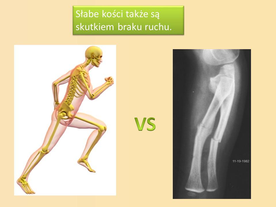 Słabe kości także są skutkiem braku ruchu.