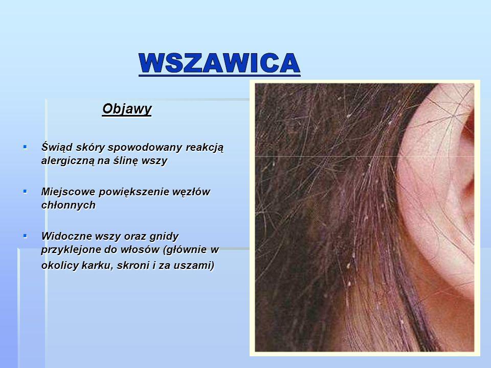 Objawy Objawy  Świąd skóry spowodowany reakcją alergiczną na ślinę wszy  Miejscowe powiększenie węzłów chłonnych  Widoczne wszy oraz gnidy przyklej