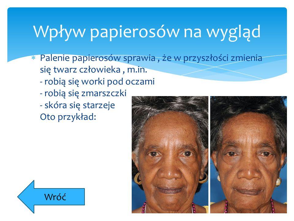  Palenie papierosów sprawia, że w przyszłości zmienia się twarz człowieka, m.in. - robią się worki pod oczami - robią się zmarszczki - skóra się star
