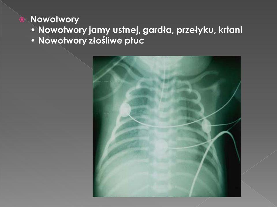  Nowotwory Nowotwory jamy ustnej, gardła, przełyku, krtani Nowotwory złośliwe płuc