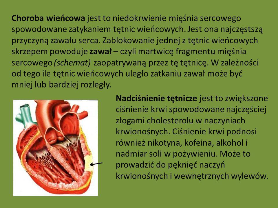 Choroba wieńcowa jest to niedokrwienie mięśnia sercowego spowodowane zatykaniem tętnic wieńcowych.