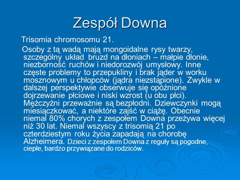 Zespół Downa Trisomia chromosomu 21. Osoby z tą wadą mają mongoidalne rysy twarzy, szczególny układ bruzd na dłoniach – małpie dłonie, niezborność ruc