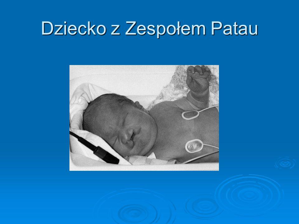 Dziecko z Zespołem Patau