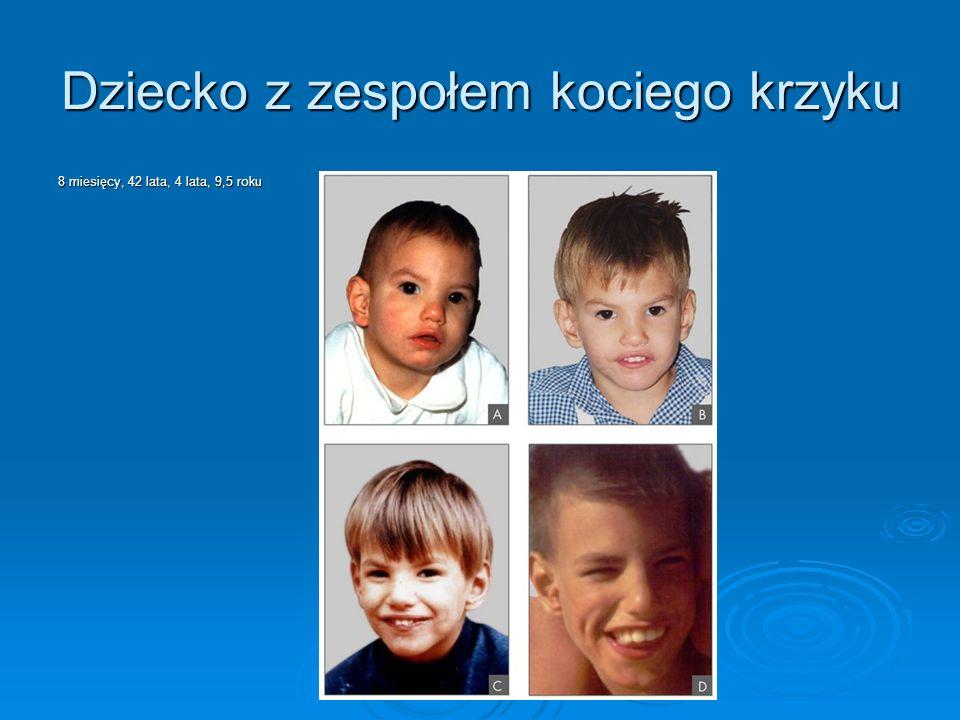 Dziecko z zespołem kociego krzyku 8 miesięcy, 42 lata, 4 lata, 9,5 roku