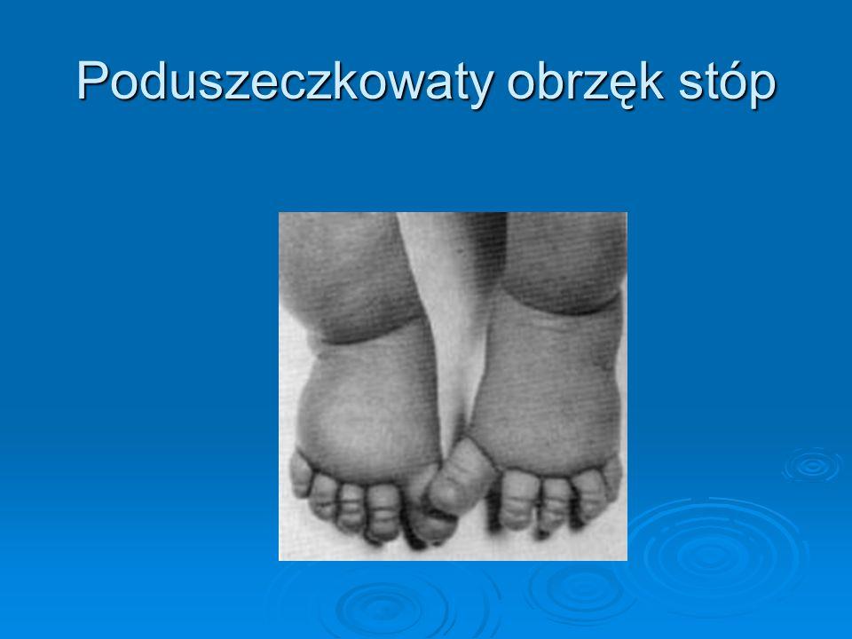 Poduszeczkowaty obrzęk stóp