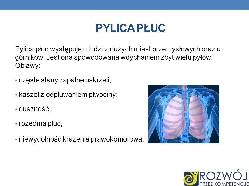 PYLICA PŁUC Pylica płuc występuje u ludzi z dużych miast przemysłowych oraz u górników. Jest ona spowodowana wdychaniem zbyt wielu pyłów. Objawy: częs