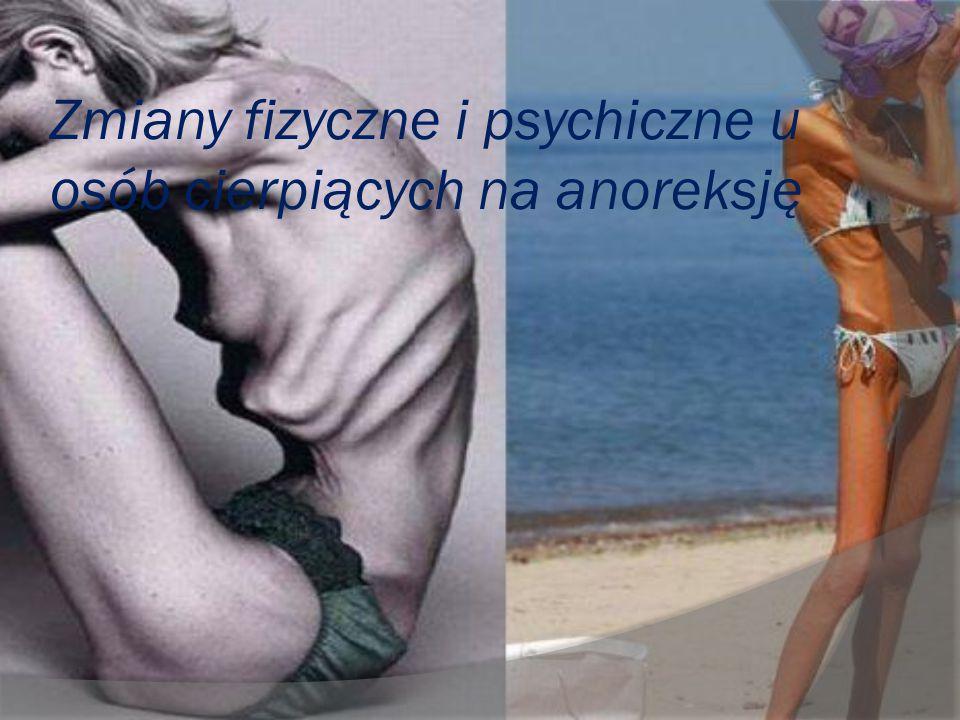 Zmiany fizyczne i psychiczne u osób cierpiących na anoreksję