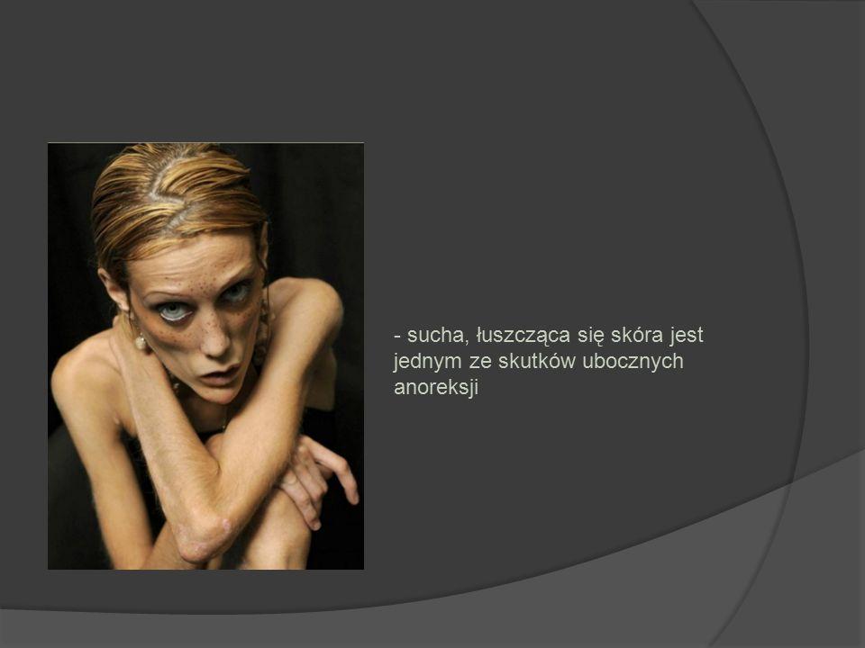 - sucha, łuszcząca się skóra jest jednym ze skutków ubocznych anoreksji