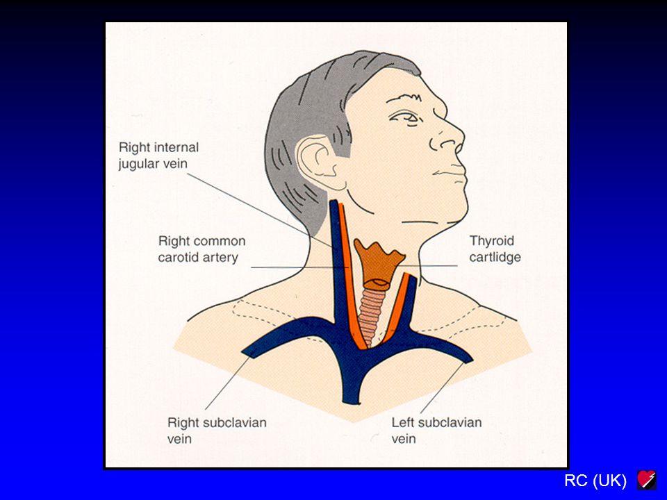 Powikłania kaniulacji żył centralnych Nakłucie tętnicy Krwiak Krwiak opłucnej Odma opłucnowa Zator powietrzny Uszkodzenie struktur powierzchownych Zaburzenie rytmu serca