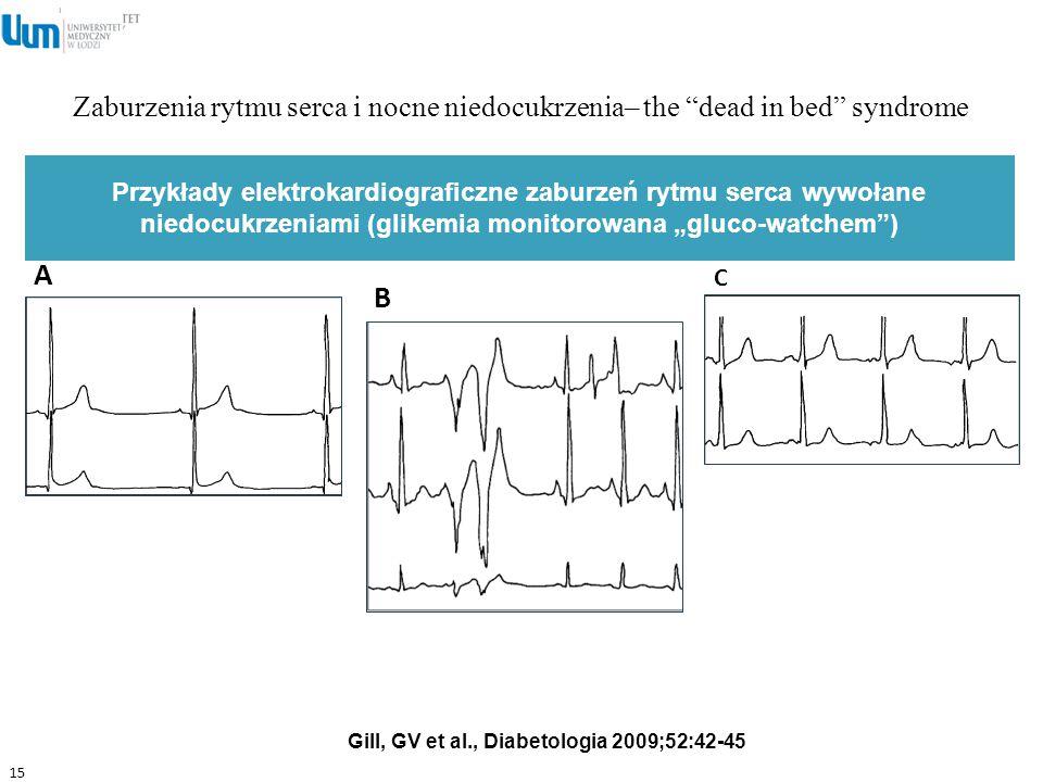 """Zaburzenia rytmu serca i nocne niedocukrzenia– the """"dead in bed"""" syndrome 15 Gill, GV et al., Diabetologia 2009;52:42-45 Przykłady elektrokardiografic"""
