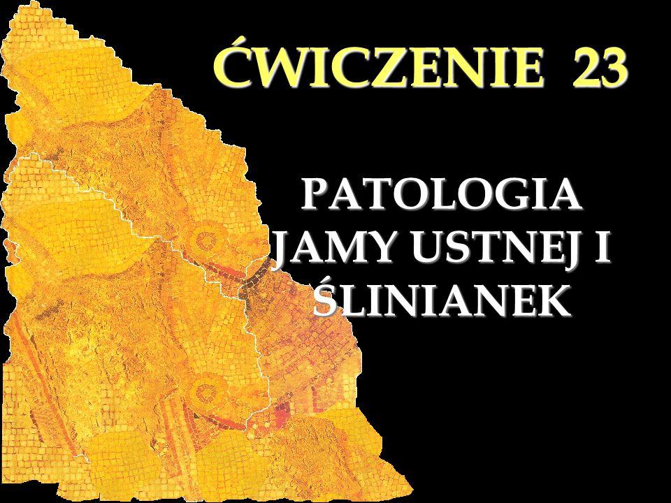 ĆWICZENIE 23 S/279.Nadziąślak olbrzymiokomórkowy (epulis gigantocellularis) 72.