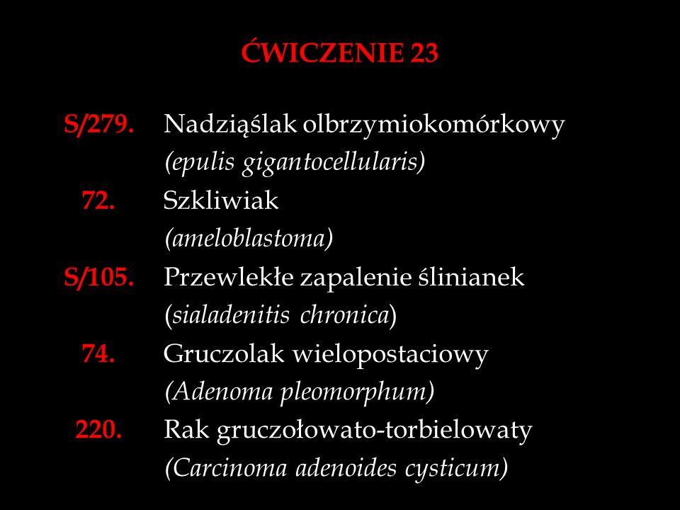 ĆWICZENIE 23 S/279. Nadziąślak olbrzymiokomórkowy (epulis gigantocellularis) 72. Szkliwiak (ameloblastoma) S/105. Przewlekłe zapalenie ślinianek ( sia