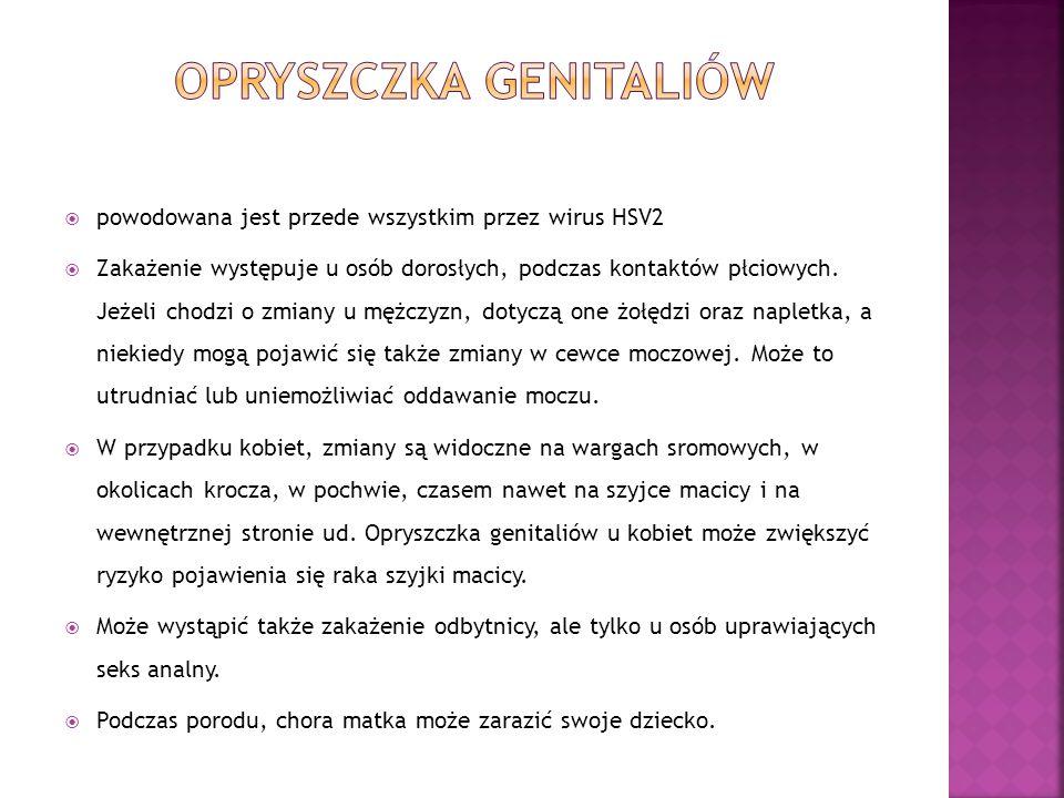  http://www.psseswidnica.pl/szczepienia/wzw.php  http://www.biomedical.pl/mezczyzna/zakazenie- wirusem-brodawczaka-ludzkiego-1718.html  http://seks.wieszjak.pl/choroby- weneryczne/236054,Mieczak-zakazny--choroba- przenoszona-droga-nie-tylko-plciowa.html  http://www.weneryczne.choroby.biz/K%C5%82ykciny +ko%C5%84czyste  http://www.psseswidnica.pl/szczepienia/wzw.php