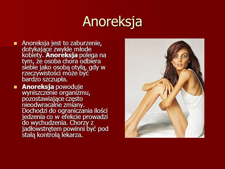 Anoreksja Anoreksja jest to zaburzenie, dotykające zwykle młode kobiety. Anoreksja polega na tym, że osoba chora odbiera siebie jako osobą otyłą, gdy
