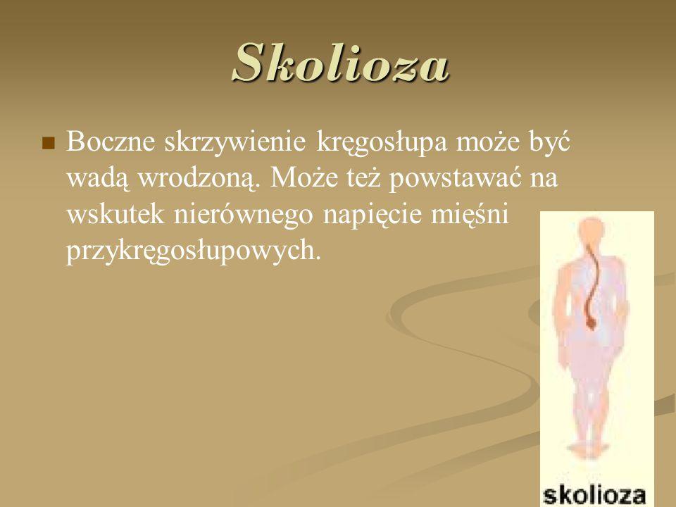 Kifoza Jest to nadmierne wygięcie kręgosłupa w stronę grzbietową.