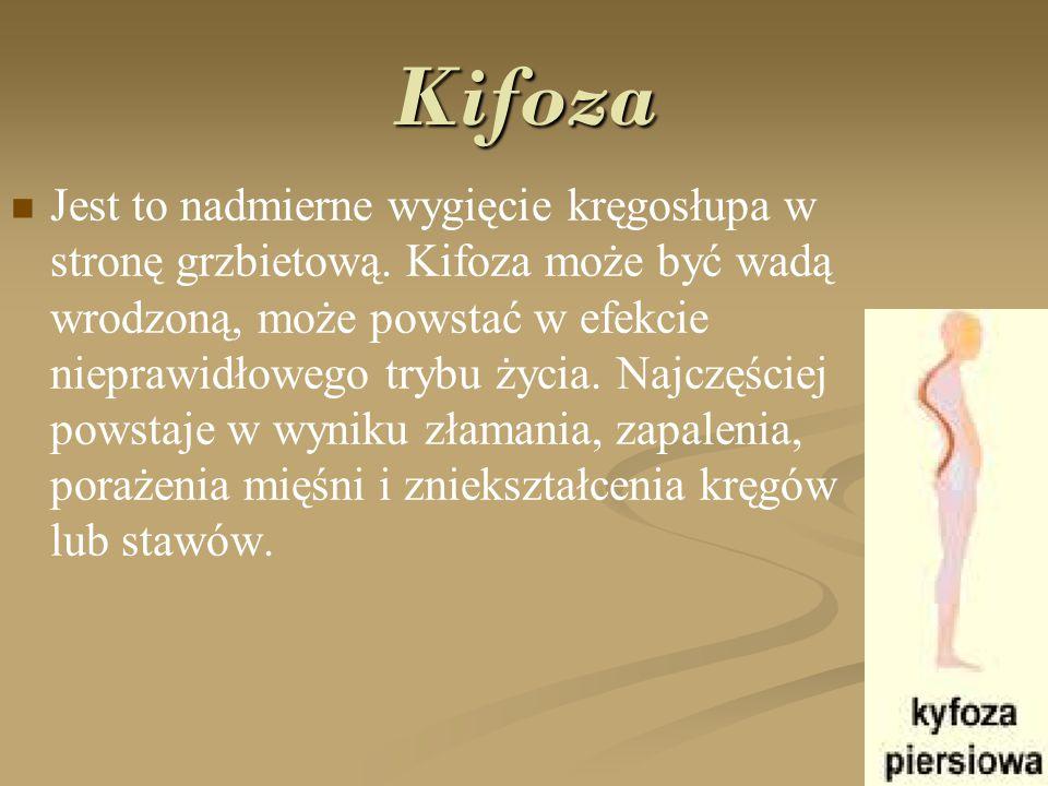 Kifoza Jest to nadmierne wygięcie kręgosłupa w stronę grzbietową. Kifoza może być wadą wrodzoną, może powstać w efekcie nieprawidłowego trybu życia. N