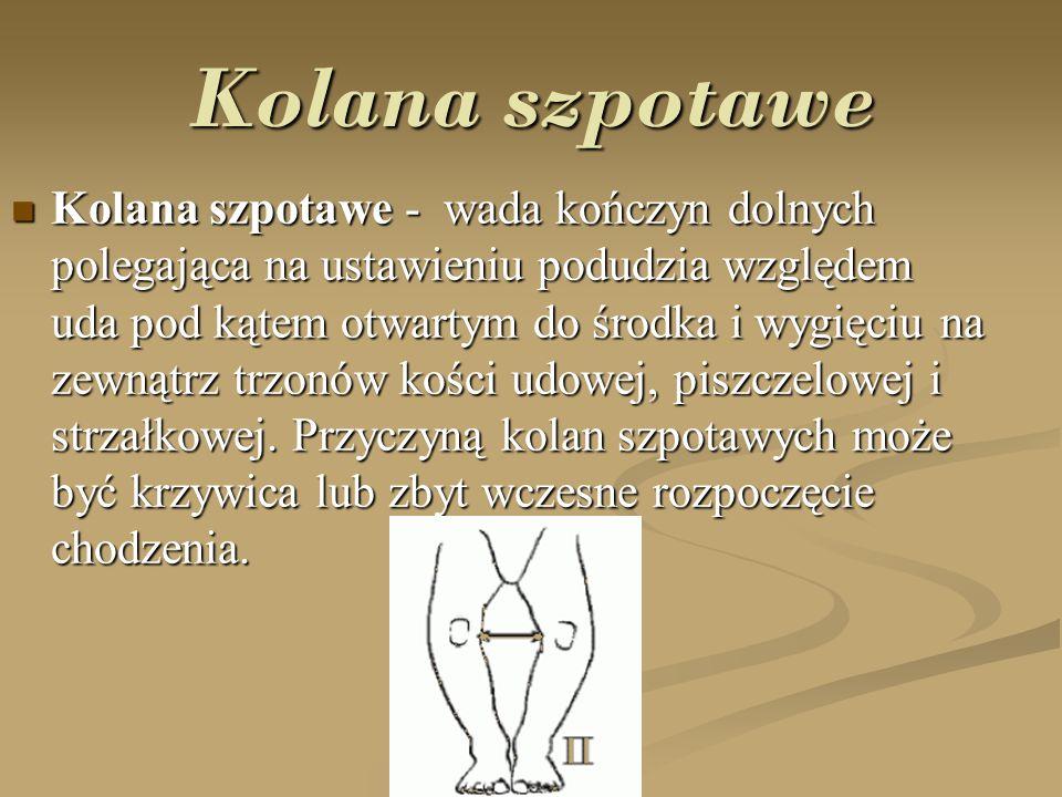 Kolana ko ś lawe Kolana koślawe - wada kończyn dolnych, w której odstęp między przyśrodkowymi kostkami, mierzony przy zwartych i wyprostowanych kolanach jest większy niż 4–5 cm.