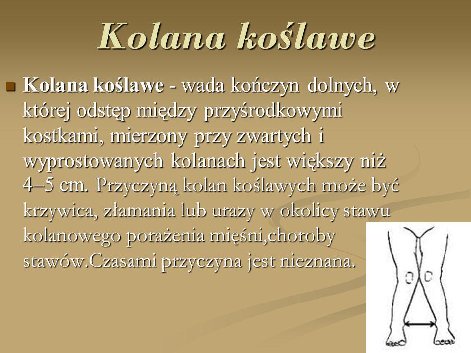 Kolana ko ś lawe Kolana koślawe - wada kończyn dolnych, w której odstęp między przyśrodkowymi kostkami, mierzony przy zwartych i wyprostowanych kolana