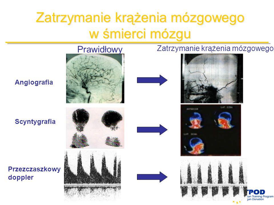Zatrzymanie krążenia mózgowego w śmierci mózgu Angiografia Scyntygrafia Przezczaszkowy doppler Prawidłowy Zatrzymanie krążenia mózgowego