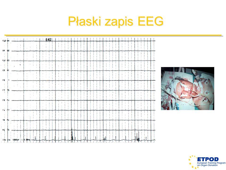 Płaski zapis EEG