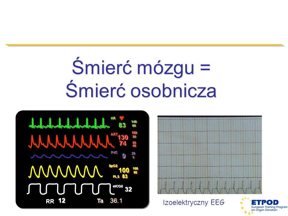 Śmierć mózgu = Śmierć osobnicza Izoelektryczny EEG HRHR 8383 1406014060 ARTART 130 74 1809018090 90 40 SpO2SpO2 PLSPLS 100100 8383 1009010090 etCO2etC