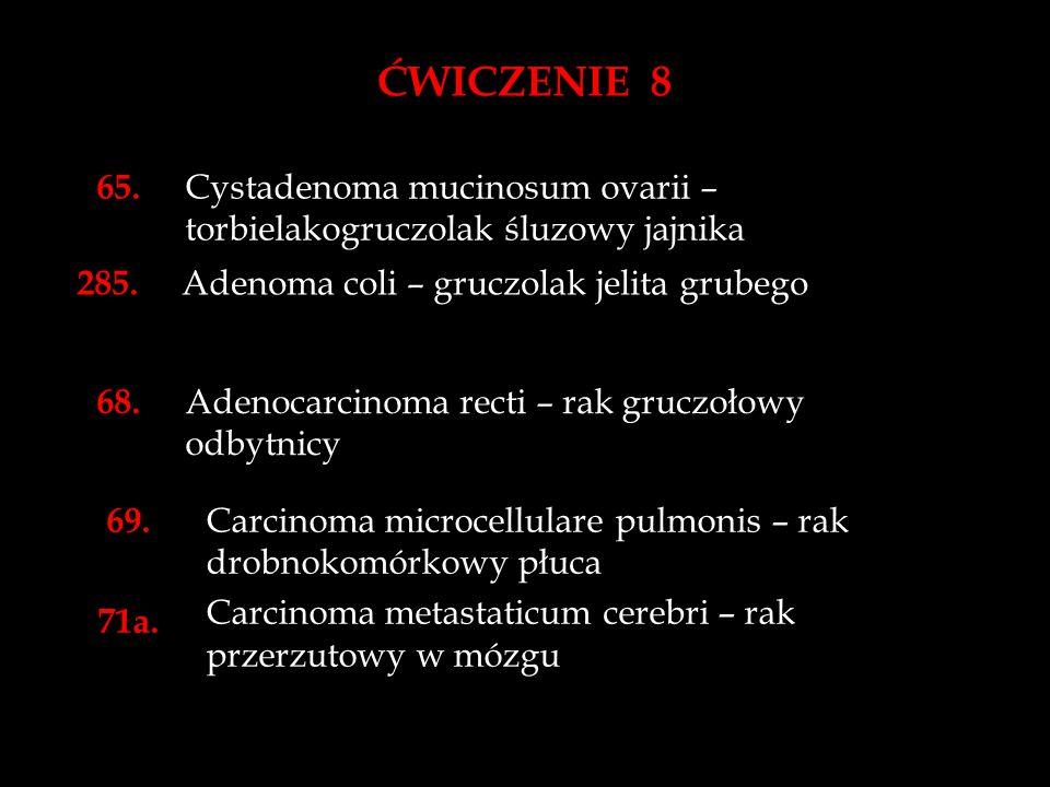 ĆWICZENIE 8 65.Cystadenoma mucinosum ovarii – torbielakogruczolak śluzowy jajnika 285.