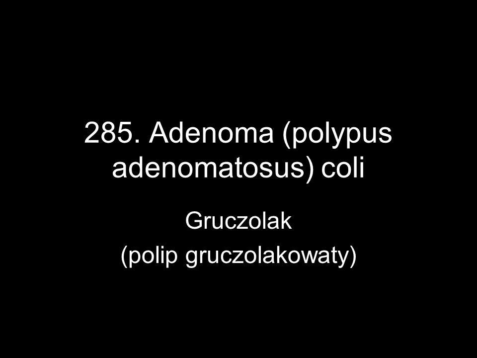 285. Adenoma (polypus adenomatosus) coli Gruczolak (polip gruczolakowaty)