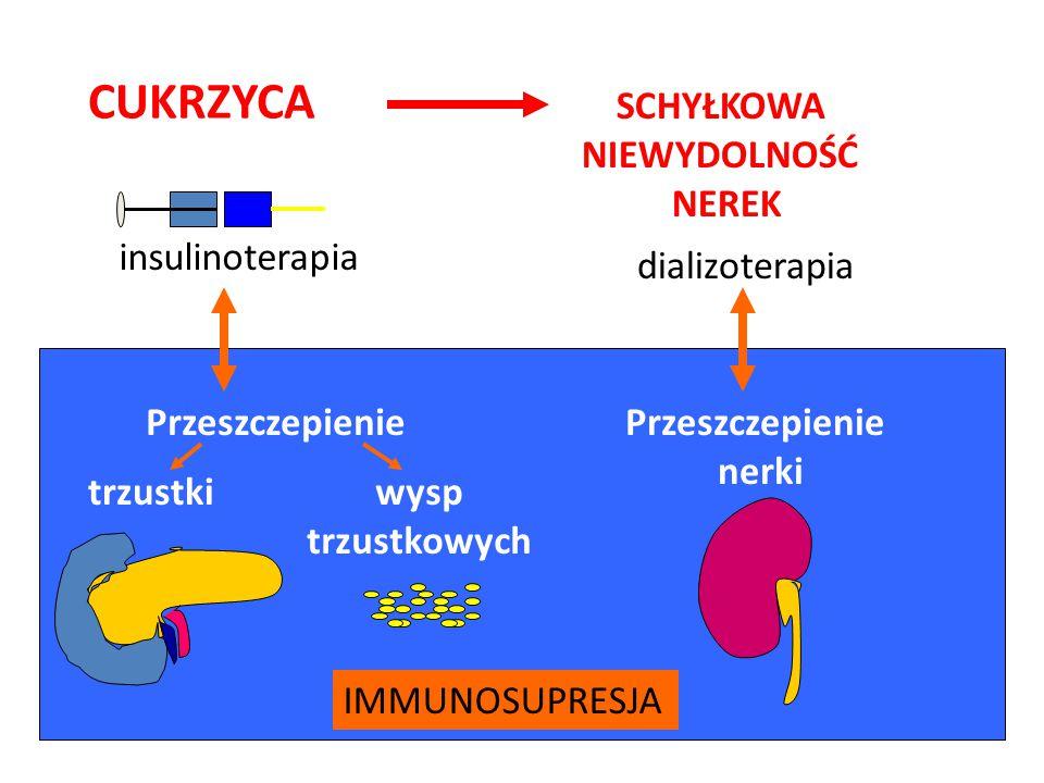 CUKRZYCA SCHYŁKOWA NIEWYDOLNOŚĆ NEREK insulinoterapia dializoterapia Przeszczepienie nerki trzustkiwysp trzustkowych IMMUNOSUPRESJA