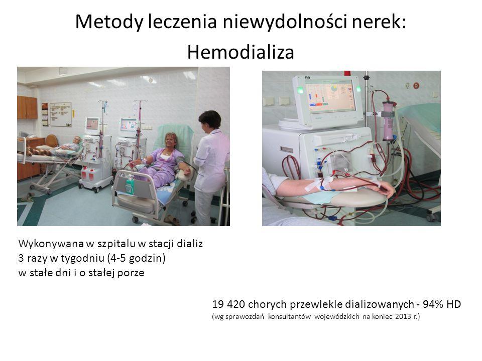 Metody leczenia niewydolności nerek: Hemodializa Wykonywana w szpitalu w stacji dializ 3 razy w tygodniu (4-5 godzin) w stałe dni i o stałej porze 19 420 chorych przewlekle dializowanych - 94% HD (wg sprawozdań konsultantów wojewódzkich na koniec 2013 r.)