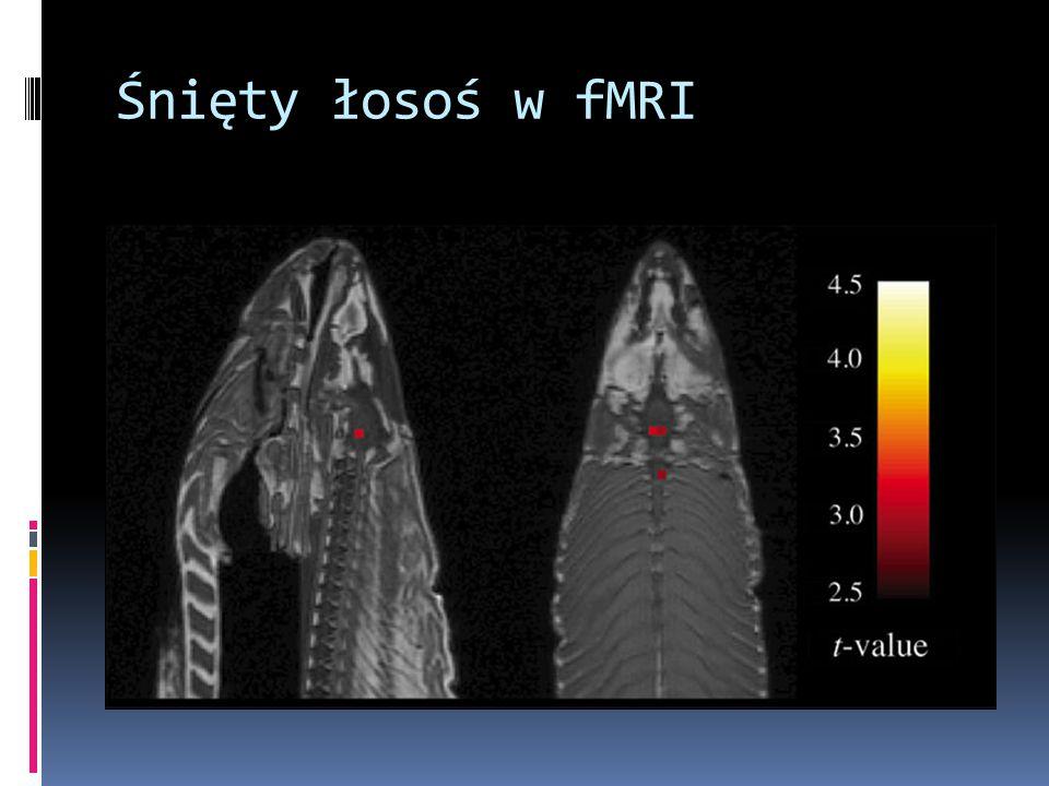 Śnięty łosoś w fMRI