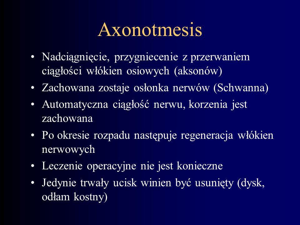 Axonotmesis Nadciągnięcie, przygniecenie z przerwaniem ciągłości włókien osiowych (aksonów) Zachowana zostaje osłonka nerwów (Schwanna) Automatyczna c