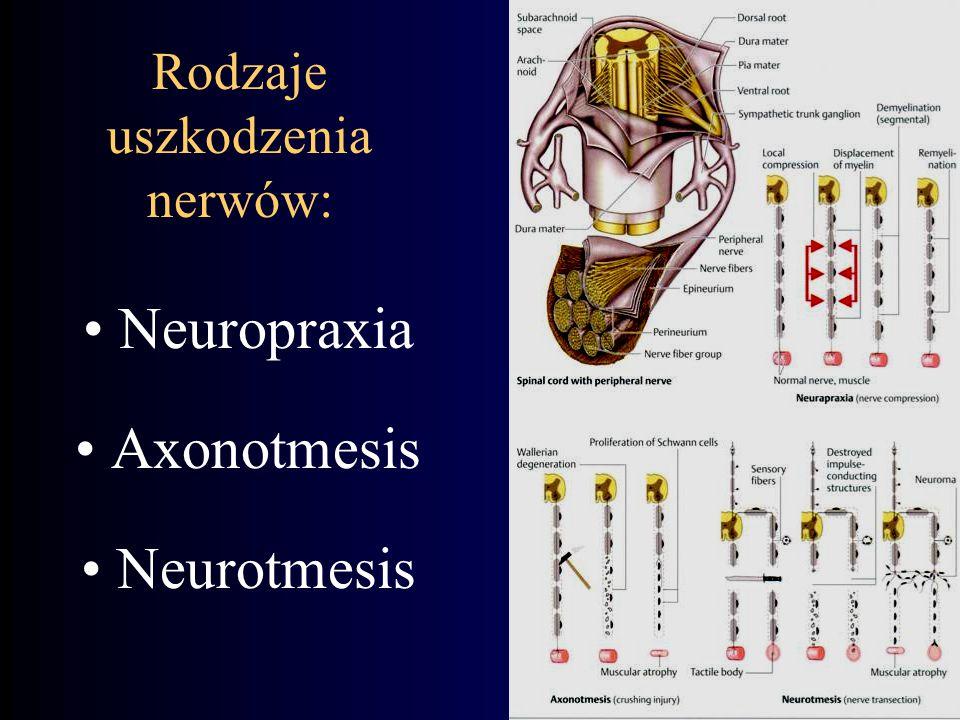 Rodzaje uszkodzenia nerwów: Neuropraxia Axonotmesis Neurotmesis
