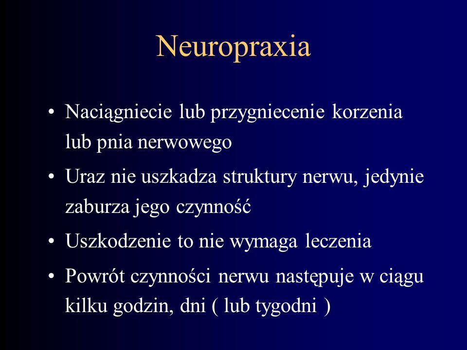 Neuropraxia Naciągniecie lub przygniecenie korzenia lub pnia nerwowego Uraz nie uszkadza struktury nerwu, jedynie zaburza jego czynność Uszkodzenie to