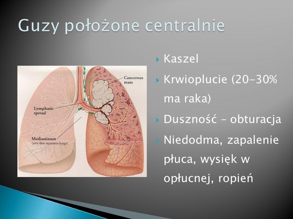  Kaszel  Krwioplucie (20-30% ma raka)  Duszność – obturacja  Niedodma, zapalenie płuca, wysięk w opłucnej, ropień