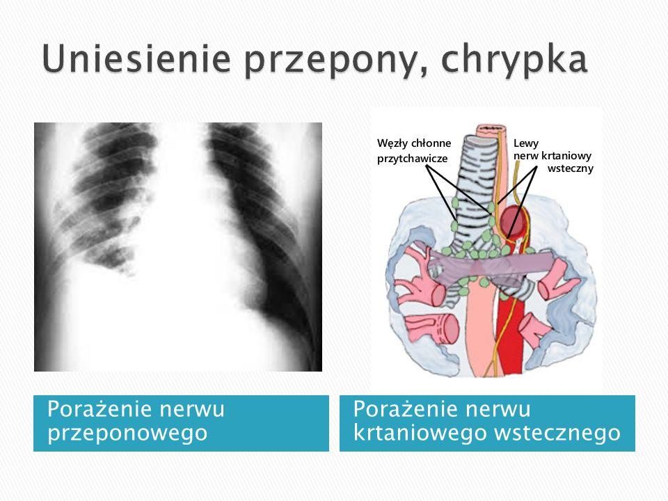Porażenie nerwu przeponowego Porażenie nerwu krtaniowego wstecznego