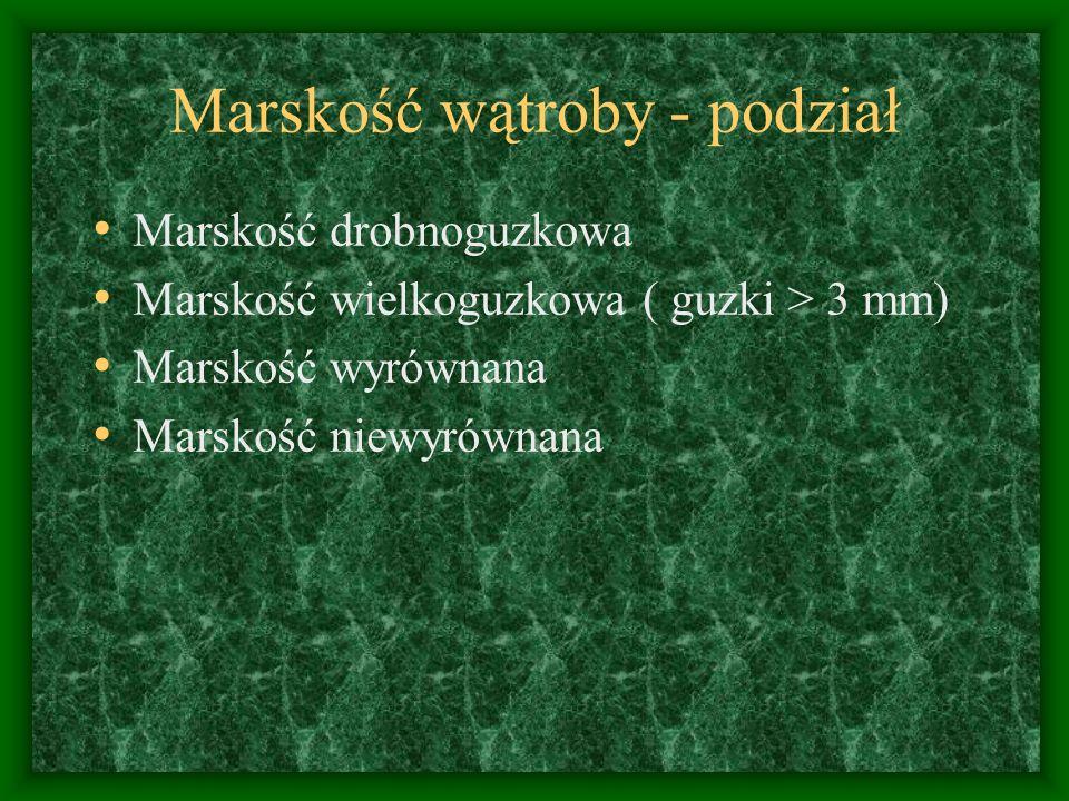 Marskość wątroby - podział Marskość drobnoguzkowa Marskość wielkoguzkowa ( guzki > 3 mm) Marskość wyrównana Marskość niewyrównana